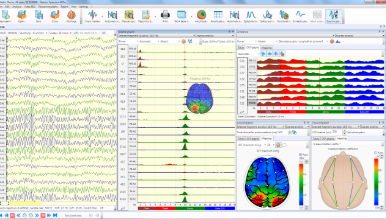 Graphs of EEG spectral and coherent analysis results