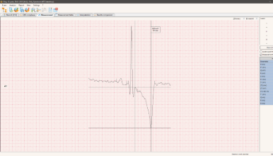 ECG of the dog. Measurement of QRS wave