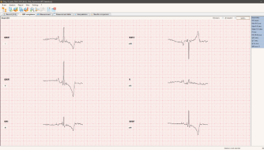 ECG of the dog. Averaged QRS wave from 6 leads
