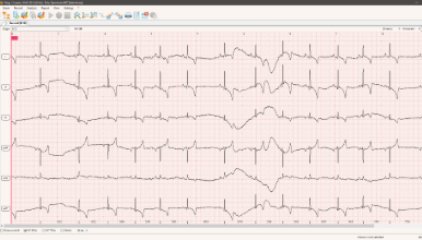 ECG monitoring of a normal dog