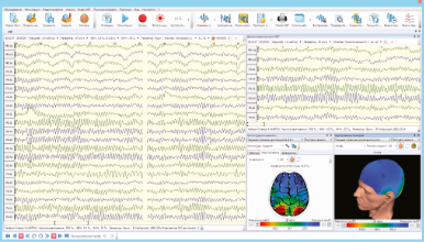 EEG acquisition and analysis