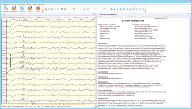 Automatic generation of EEG exam report