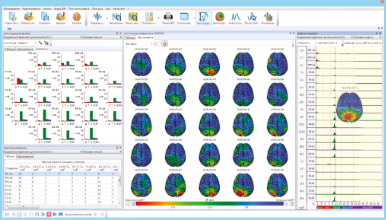Brain mapping and bar charts of EEG analysis results