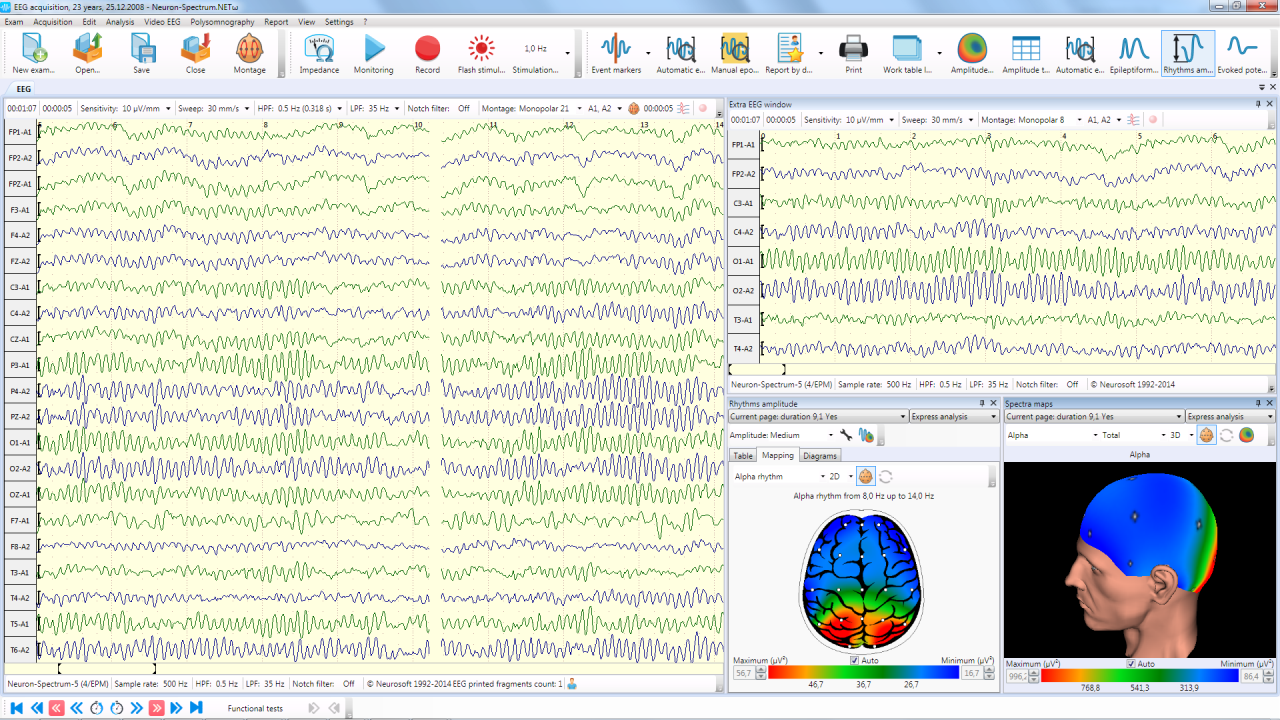 EEG acquisition
