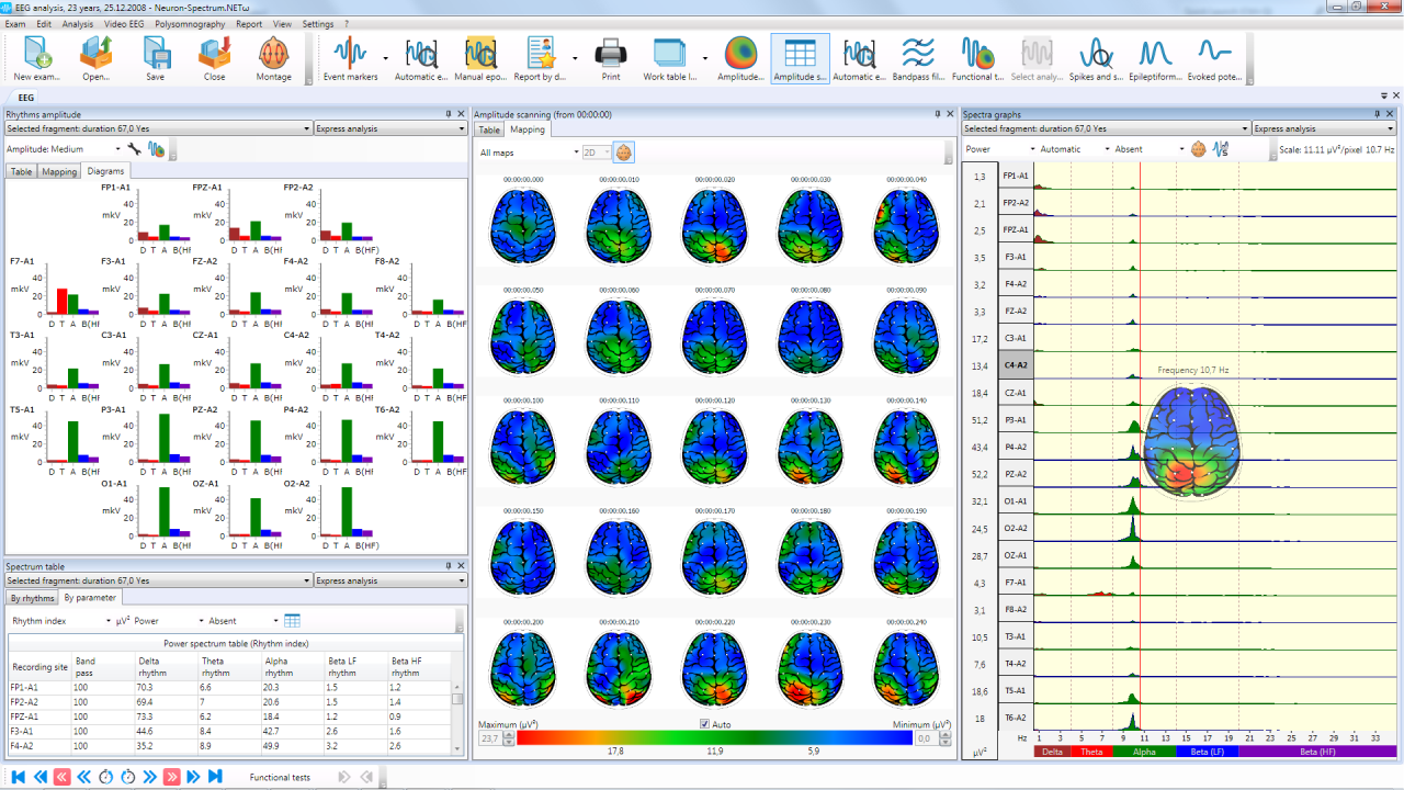 Brain mapping and bar charts </br>of EEG analysis results