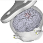 The principles and application of MRI-Guided Neuronavigation
