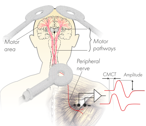 Neuro Ms D Therapeutic Transcranial Magnetic Stimulator