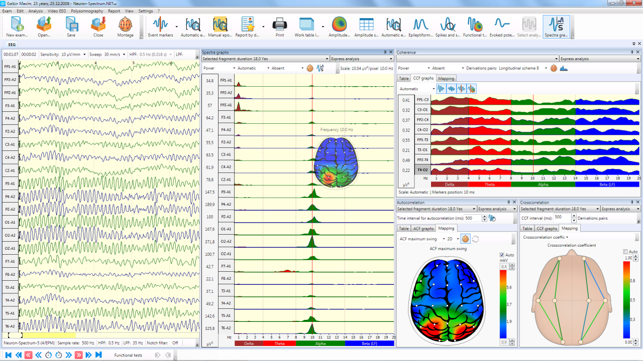 analyzing an electroencephalography report eeg Proceedings of the epilepsy foundation's 2017 cannabinoids in epilepsy  response to the cdc report on death in children with  how to read an eeg learn.